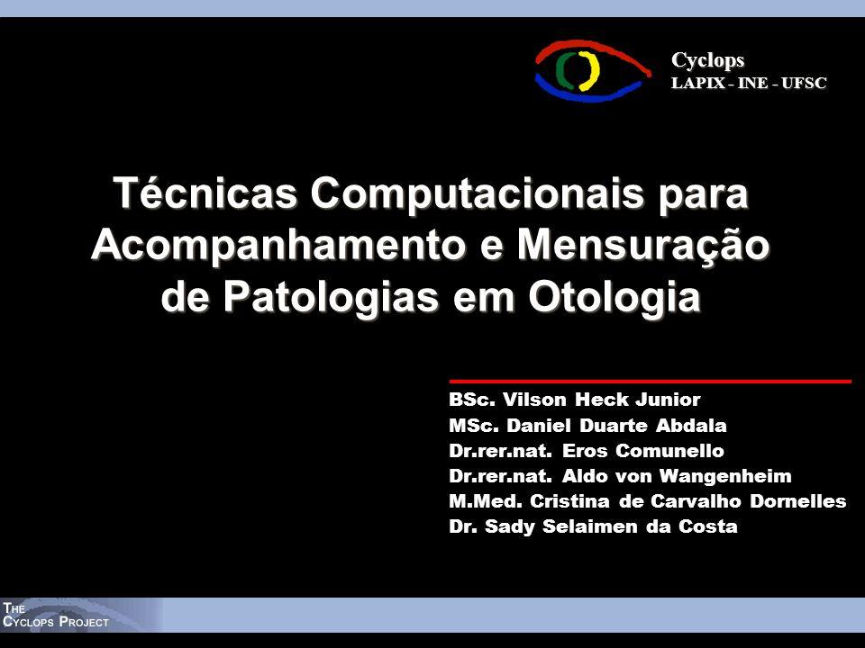 Cyclops Cyclops LAPIX - INE - UFSC Técnicas Computacionais para Acompanhamento e Mensuração de Patologias em Otologia BSc. Vilson Heck Junior MSc. Dan