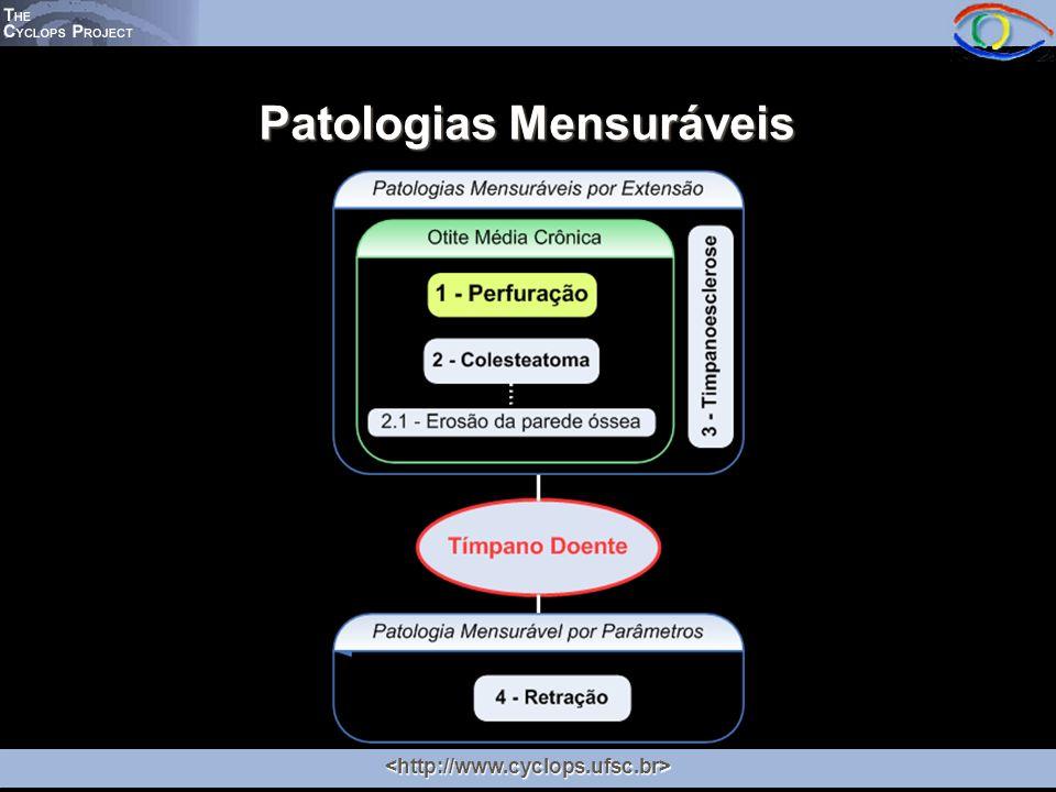 Patologias Mensuráveis Tímpano Íntegro Não Visível Área Visível Área da Perfuração Tímpano Íntegro Visível
