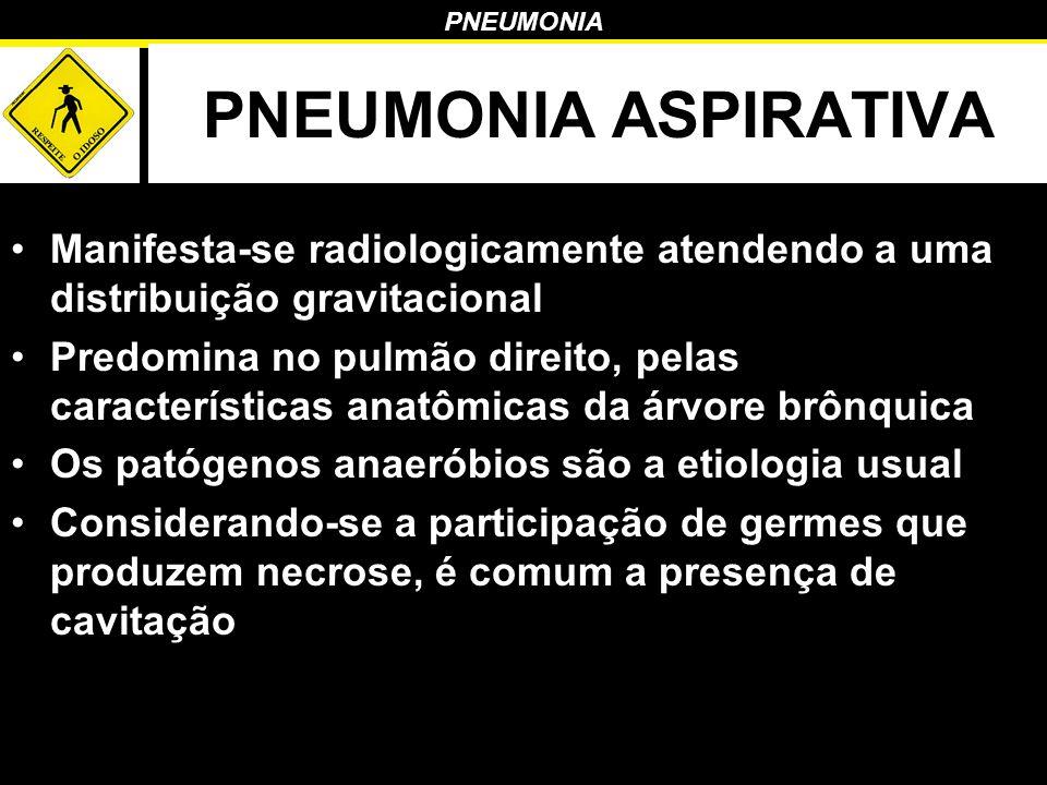 PNEUMONIA PNEUMONIA ASPIRATIVA Manifesta-se radiologicamente atendendo a uma distribuição gravitacional Predomina no pulmão direito, pelas característ