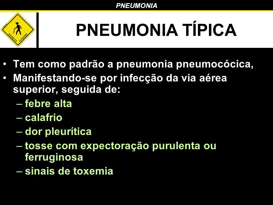 PNEUMONIA PNEUMONIA TÍPICA Tem como padrão a pneumonia pneumocócica, Manifestando-se por infecção da via aérea superior, seguida de: –febre alta –cala