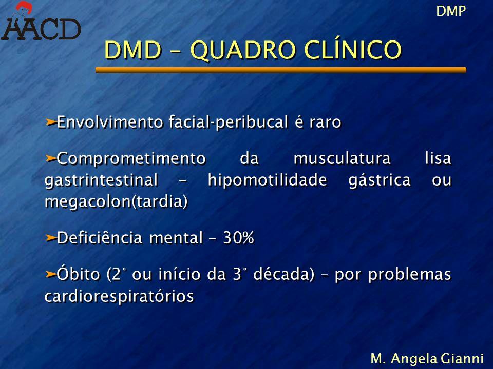 DMP M. Angela Gianni DMD – QUADRO CLÍNICO äEnvolvimento facial-peribucal é raro äComprometimento da musculatura lisa gastrintestinal – hipomotilidade