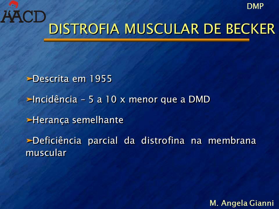 DMP M. Angela Gianni DISTROFIA MUSCULAR DE BECKER äDescrita em 1955 äIncidência – 5 a 10 x menor que a DMD äHerança semelhante äDeficiência parcial da