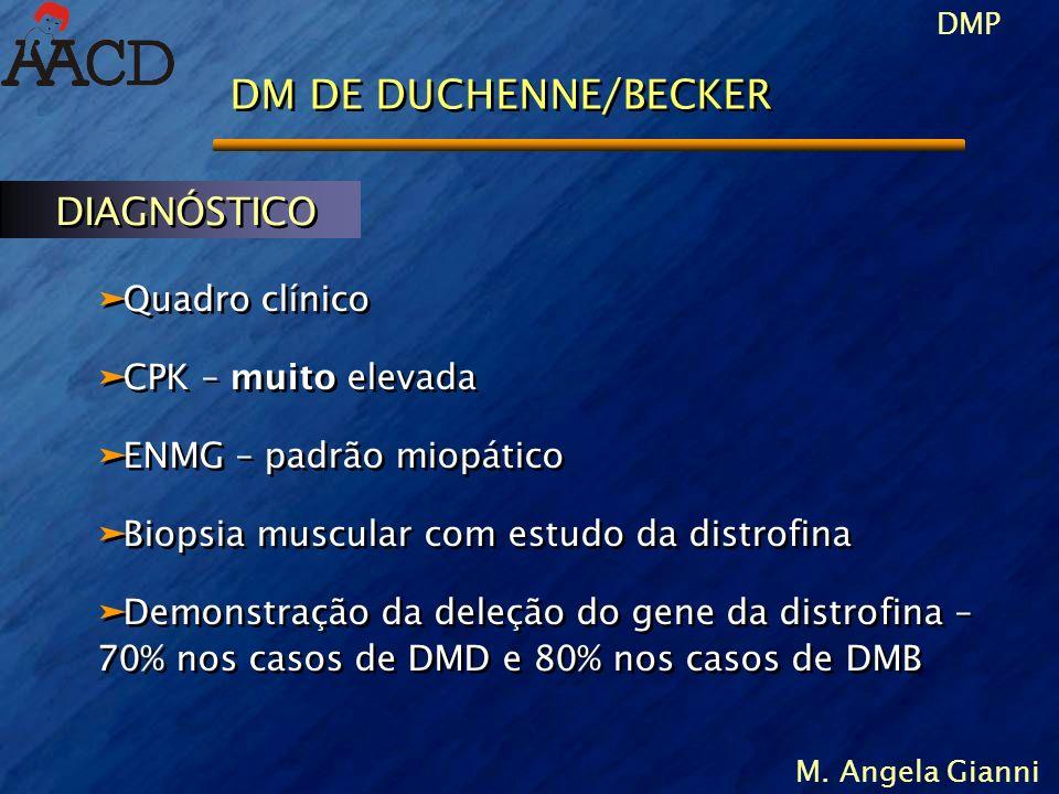 DMP M. Angela Gianni DM DE DUCHENNE/BECKER äQuadro clínico äCPK – muito elevada äENMG – padrão miopático äBiopsia muscular com estudo da distrofina äD