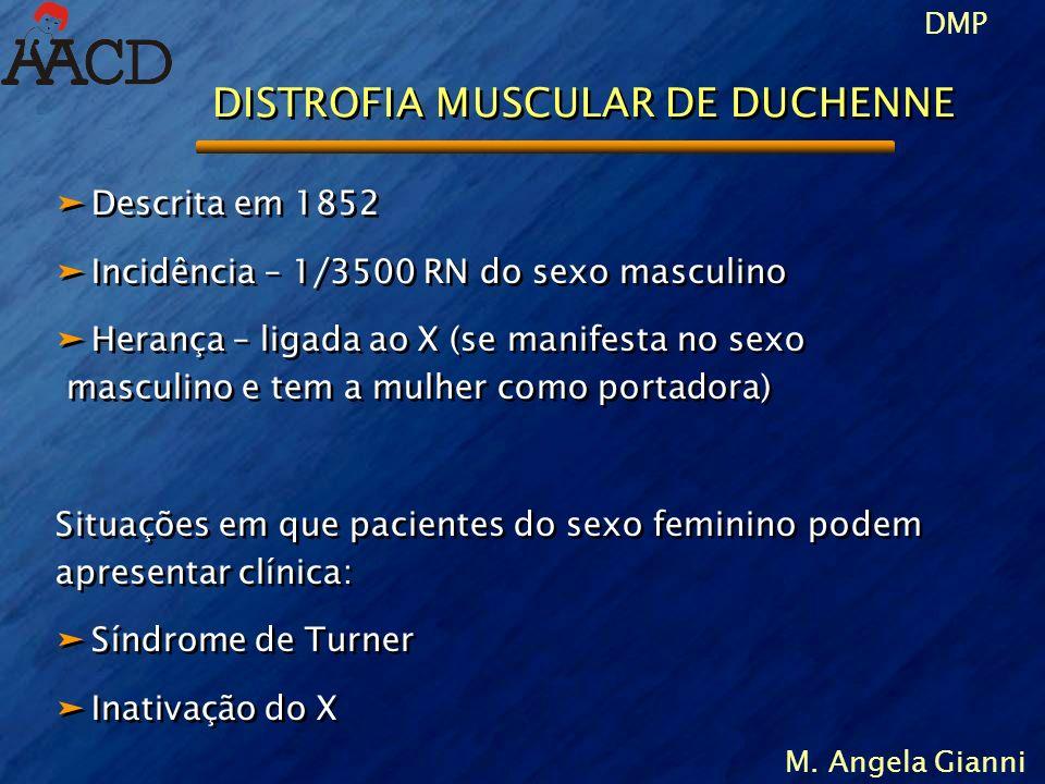 M. Angela Gianni ä Descrita em 1852 ä Incidência – 1/3500 RN do sexo masculino ä Herança – ligada ao X (se manifesta no sexo masculino e tem a mulher