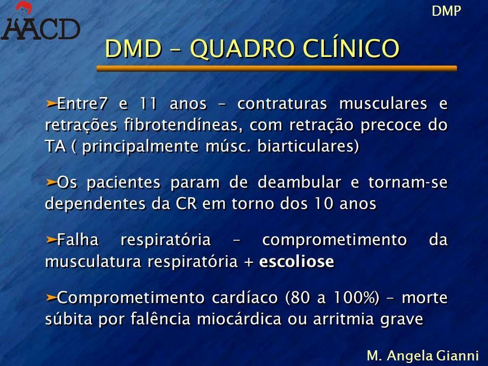 DMP M. Angela Gianni DMD – QUADRO CLÍNICO äEntre7 e 11 anos – contraturas musculares e retrações fibrotendíneas, com retração precoce do TA ( principa
