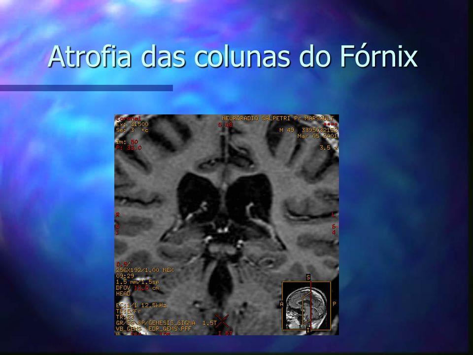 Atrofia das colunas do Fórnix