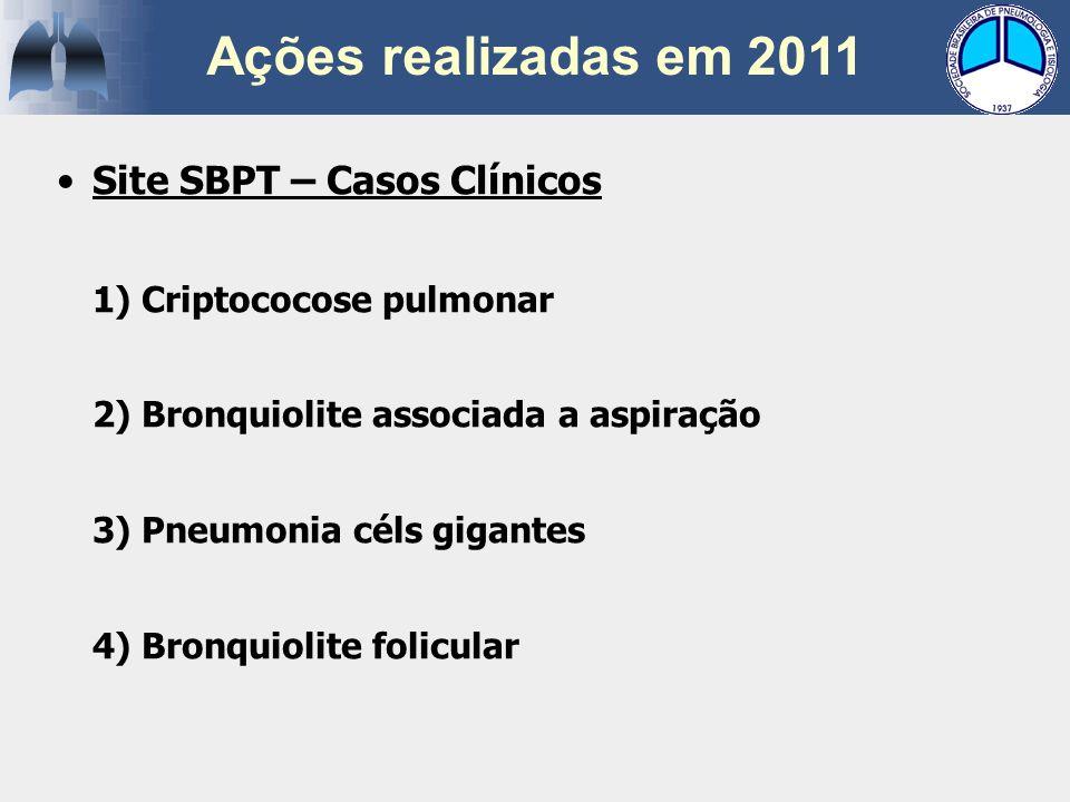 Site SBPT – Casos Clínicos 1) Criptococose pulmonar 2) Bronquiolite associada a aspiração 3) Pneumonia céls gigantes 4) Bronquiolite folicular Ações r