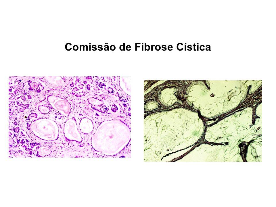 Desafios no diagnóstico Fibrose Cística Santos GP et al.