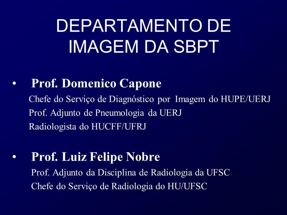 DEPARTAMENTO DE IMAGEM DA SBPT Prof. Domenico Capone Chefe do Serviço de Diagnóstico por Imagem do HUPE/UERJ Prof. Adjunto de Pneumologia da UERJ Radi