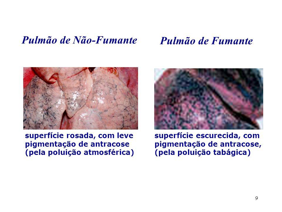 9 Pulmão de Não-Fumante Pulmão de Fumante superfície rosada, com leve pigmentação de antracose (pela poluição atmosférica) superfície escurecida, com