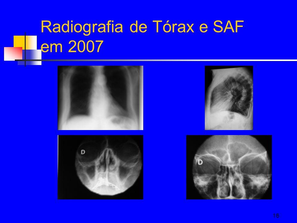 16 Radiografia de Tórax e SAF em 2007