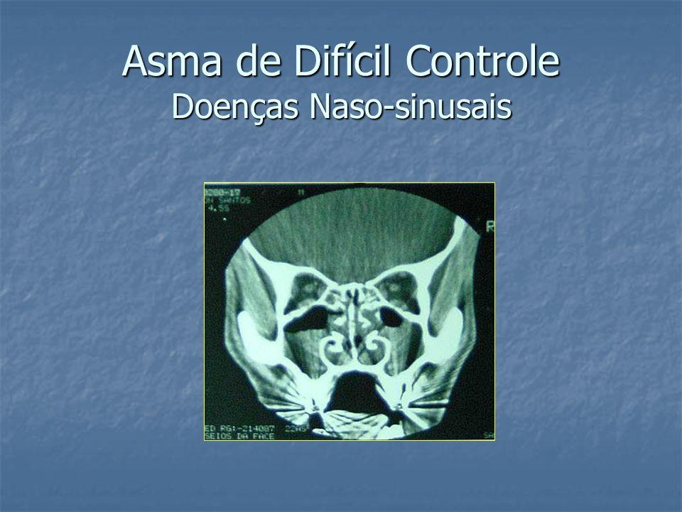 Asma de Difícil Controle Doenças Naso-sinusais