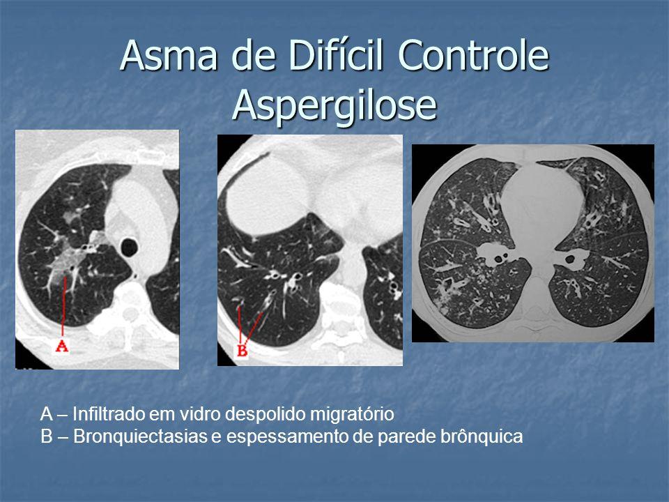 Asma de Difícil Controle Aspergilose A – Infiltrado em vidro despolido migratório B – Bronquiectasias e espessamento de parede brônquica
