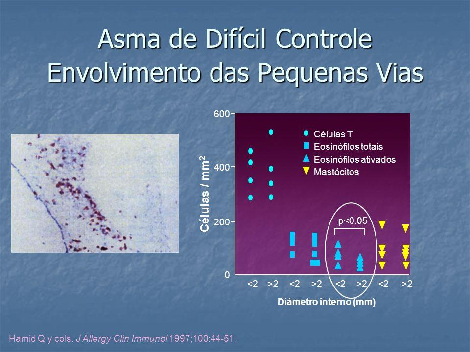 Asma de Difícil Controle Envolvimento das Pequenas Vias Hamid Q y cols. J Allergy Clin Immunol 1997;100:44-51. 600 400 200 Diâmetro interno (mm) 0 <2>