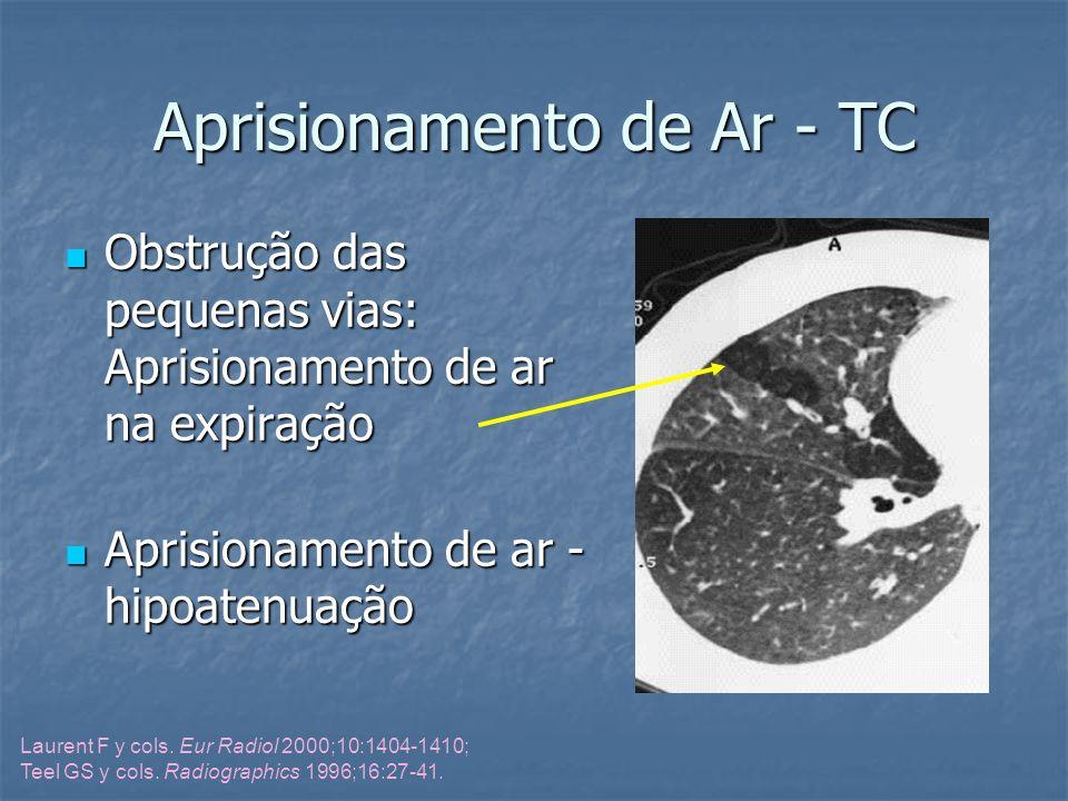 Aprisionamento de Ar - TC Obstrução das pequenas vias: Aprisionamento de ar na expiração Obstrução das pequenas vias: Aprisionamento de ar na expiraçã