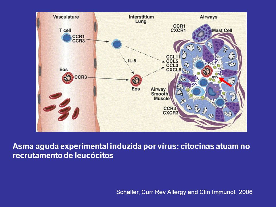Asma aguda experimental induzida por vírus: citocinas atuam no recrutamento de leucócitos Schaller, Curr Rev Allergy and Clin Immunol, 2006