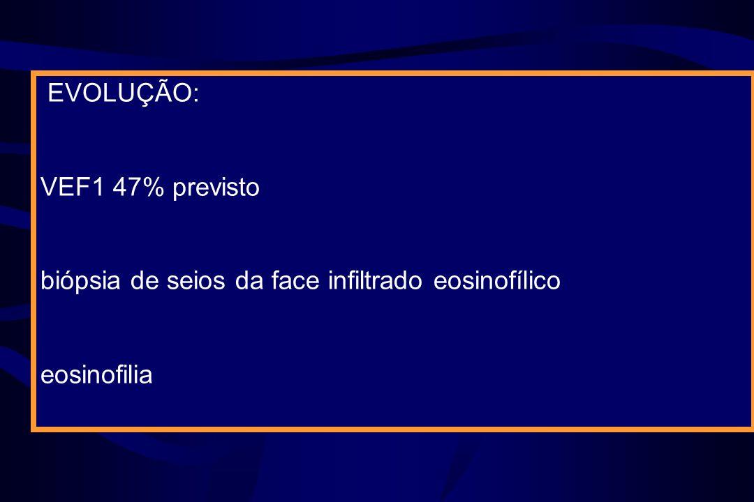 EVOLUÇÃO: VEF1 47% previsto biópsia de seios da face infiltrado eosinofílico eosinofilia