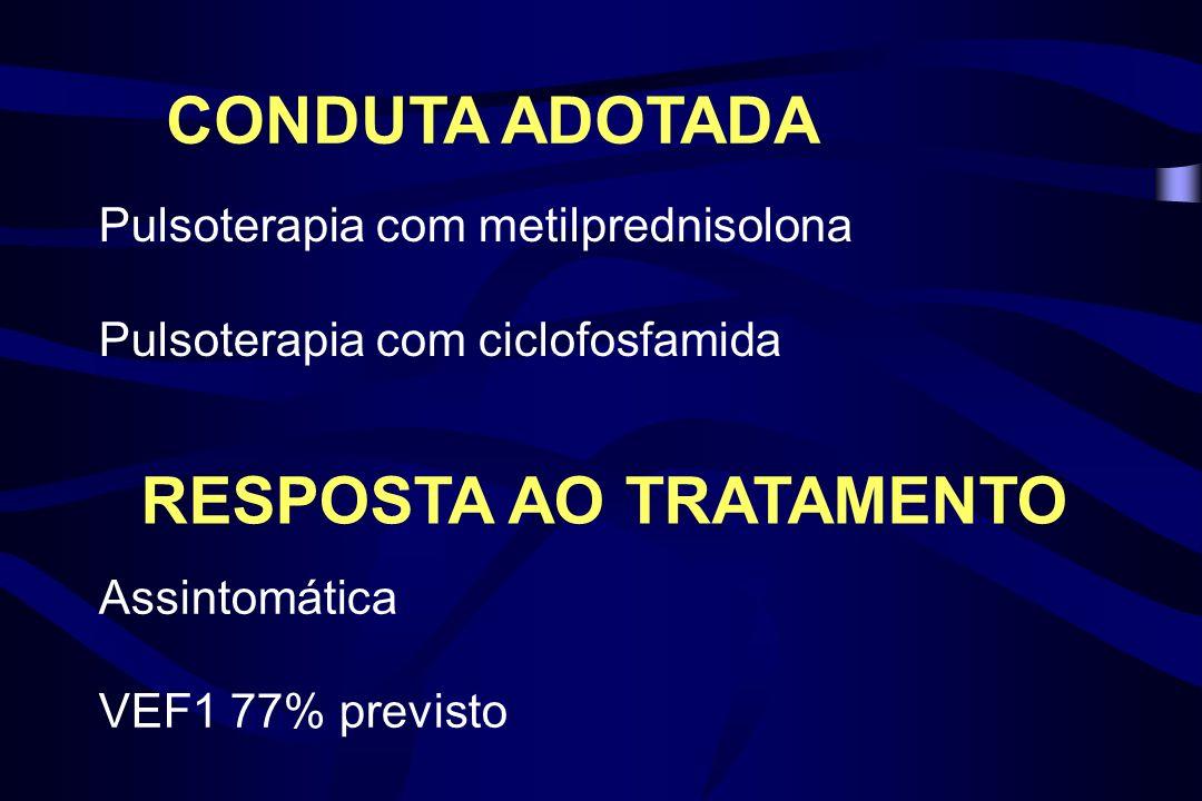 CONDUTA ADOTADA Pulsoterapia com metilprednisolona Pulsoterapia com ciclofosfamida Assintomática VEF1 77% previsto RESPOSTA AO TRATAMENTO