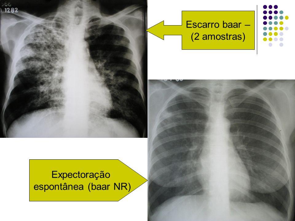 Escarro baar – (2 amostras) Expectoração espontânea (baar NR)
