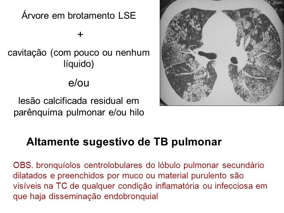 Árvore em brotamento LSE + cavitação (com pouco ou nenhum líquido) e/ou lesão calcificada residual em parênquima pulmonar e/ou hilo Altamente sugestiv