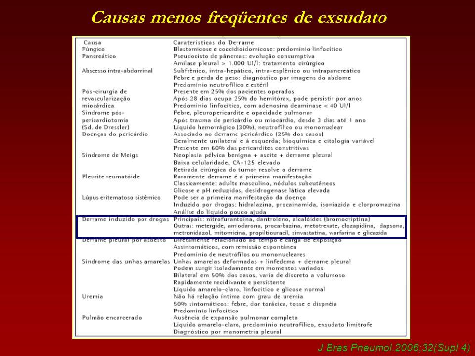 Causas menos freqüentes de exsudato J Bras Pneumol.2006;32(Supl 4)