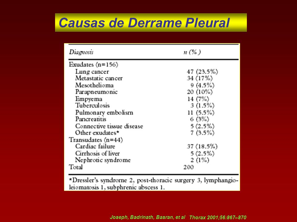 Causas de Derrame Pleural Joseph, Badrinath, Basran, et al Thorax 2001;56:867–870