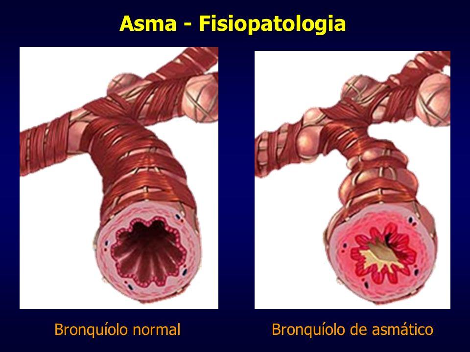 Musculatura Lisa em Asma Musculatura Lisa Via aérea normal Via aérea em asmático Broncoconstrição Hiperreatividade Brônquica