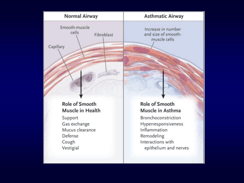 Termoplastia Brônquica A termoplastia brônquica com o sistema Alair ® reduz a musculatura lisa brônquica através da liberação controlada de calor nas vias aéreas.
