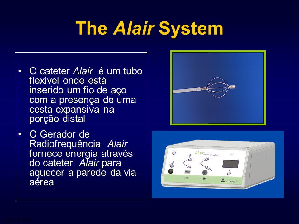 The Alair System O cateter Alair é um tubo flexível onde está inserido um fio de aço com a presença de uma cesta expansiva na porção distal O Gerador