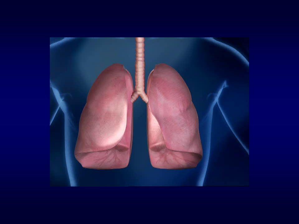 AIR Trial: Resultados de Segurança 55 pacientes (161 broncoscopias) Efeitos adversos durante a fase de tratamento: –69% leves, 28% moderados, 3% severos.