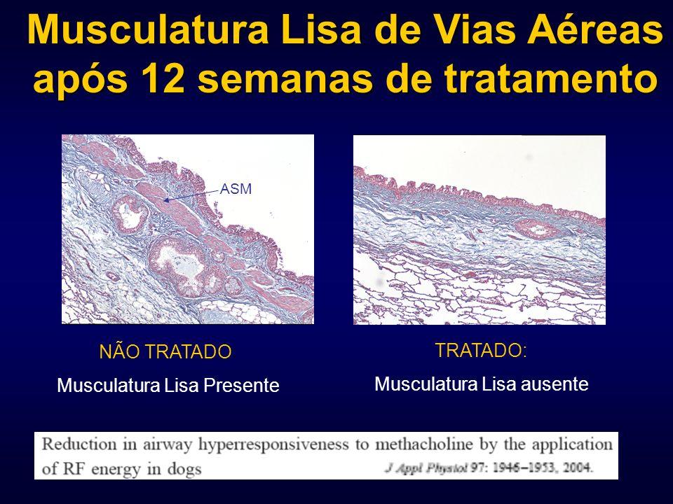 NÃO TRATADO: Musculatura Lisa Presente TRATADO: Musculatura Lisa ausente Musculatura Lisa de Vias Aéreas após 12 semanas de tratamento ASM