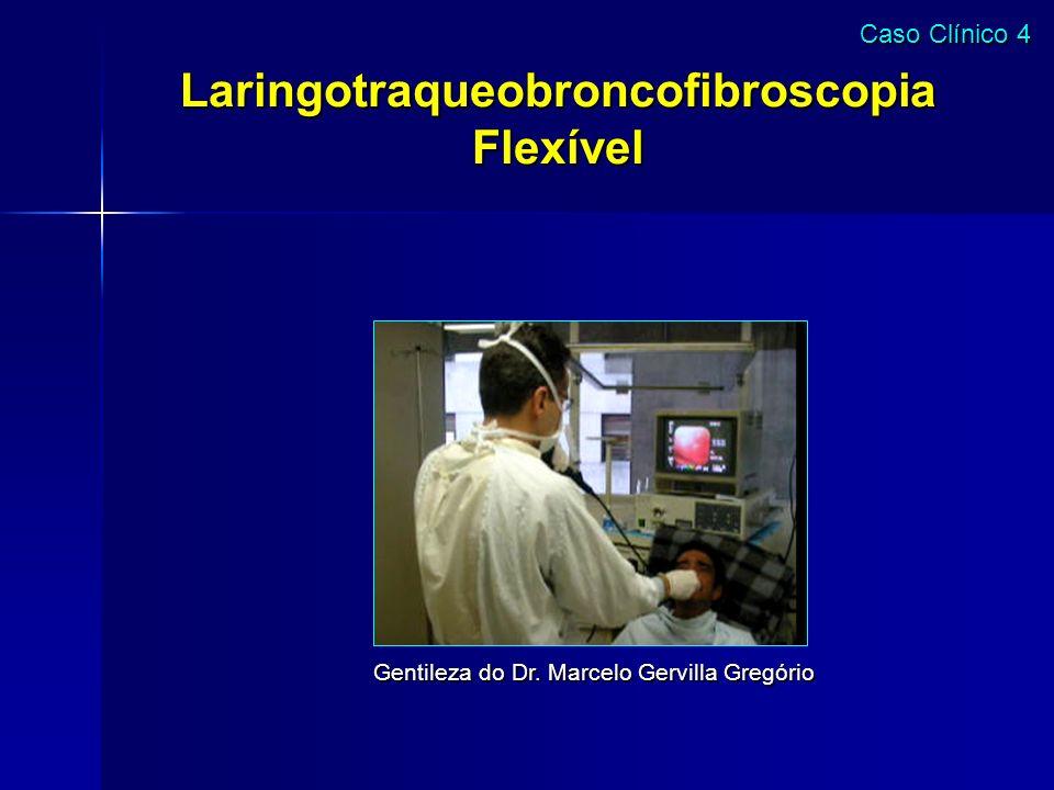 Laringotraqueobroncofibroscopia Flexível Gentileza do Dr. Marcelo Gervilla Gregório Caso Clínico 4