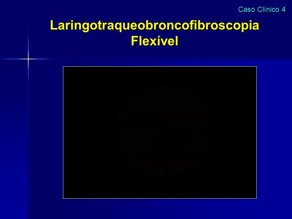 Laringotraqueobroncofibroscopia Flexível Caso Clínico 4