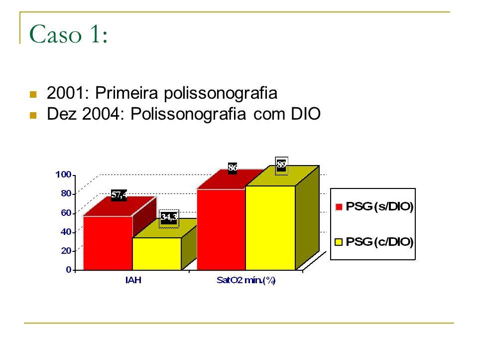 Caso 1: 2001: Primeira polissonografia Dez 2004: Polissonografia com DIO
