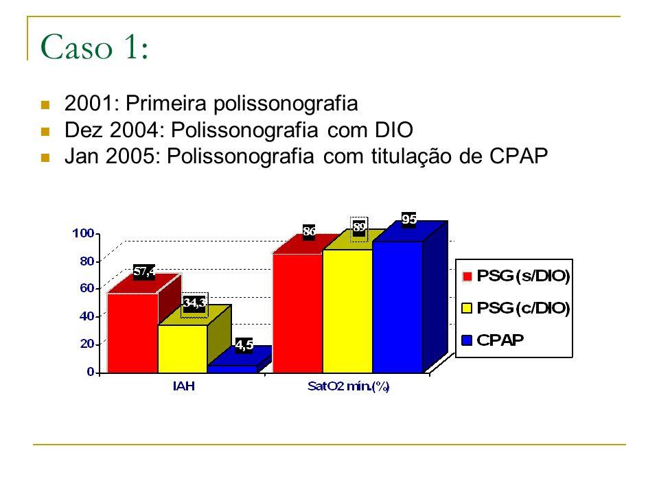 Caso 1: 2001: Primeira polissonografia Dez 2004: Polissonografia com DIO Jan 2005: Polissonografia com titulação de CPAP