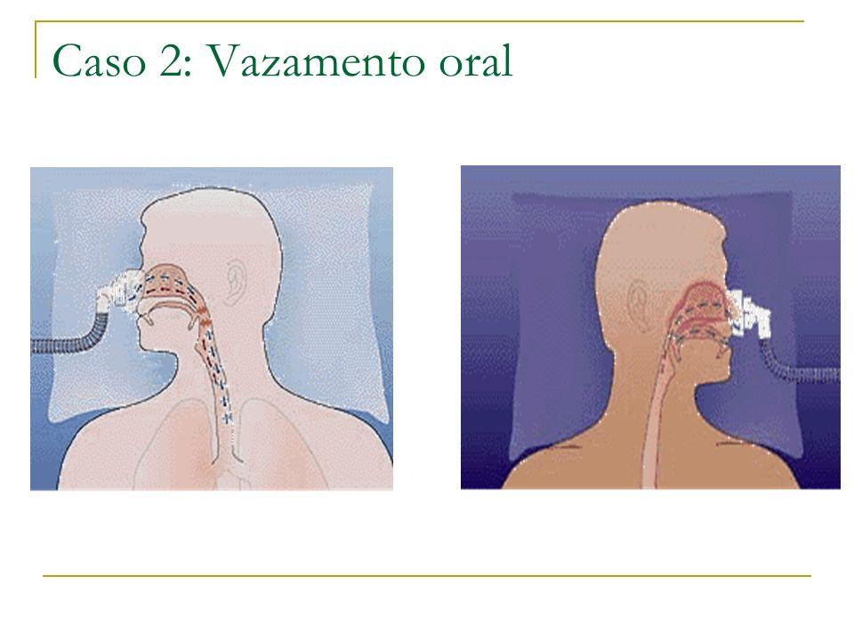 Caso 2: Vazamento oral