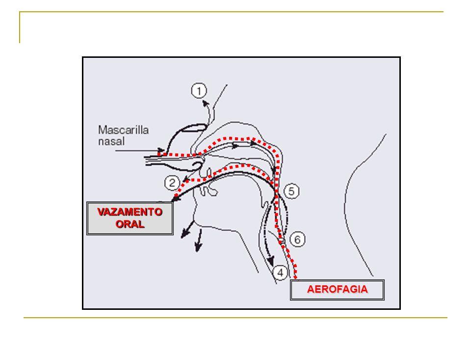 AEROFAGIA VAZAMENTO ORAL