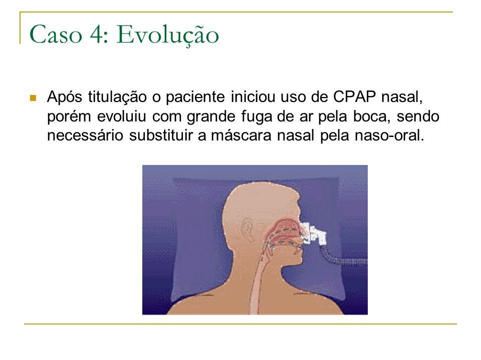 Caso 4: Evolução Após titulação o paciente iniciou uso de CPAP nasal, porém evoluiu com grande fuga de ar pela boca, sendo necessário substituir a más