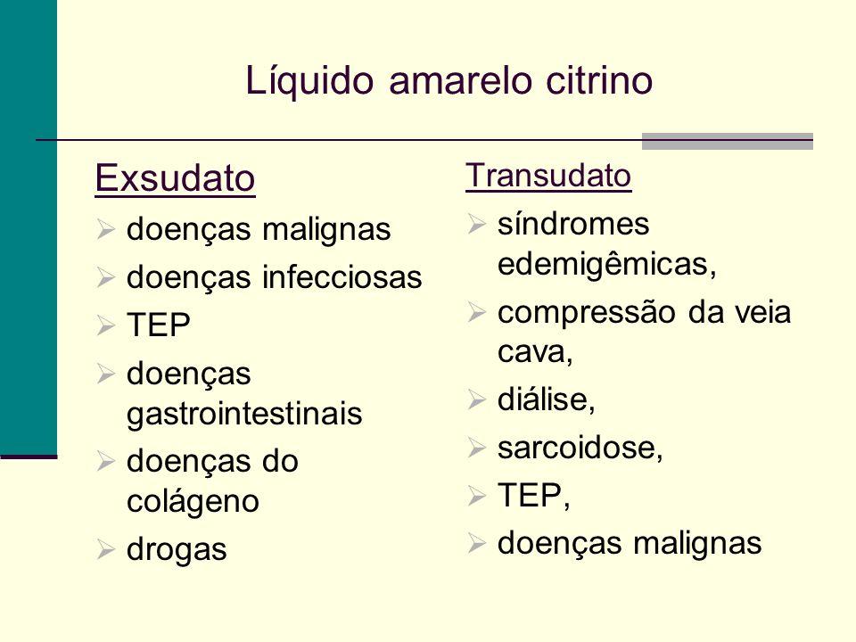 Líquido amarelo citrino Exsudato doenças malignas doenças infecciosas TEP doenças gastrointestinais doenças do colágeno drogas Transudato síndromes edemigêmicas, compressão da veia cava, diálise, sarcoidose, TEP, doenças malignas