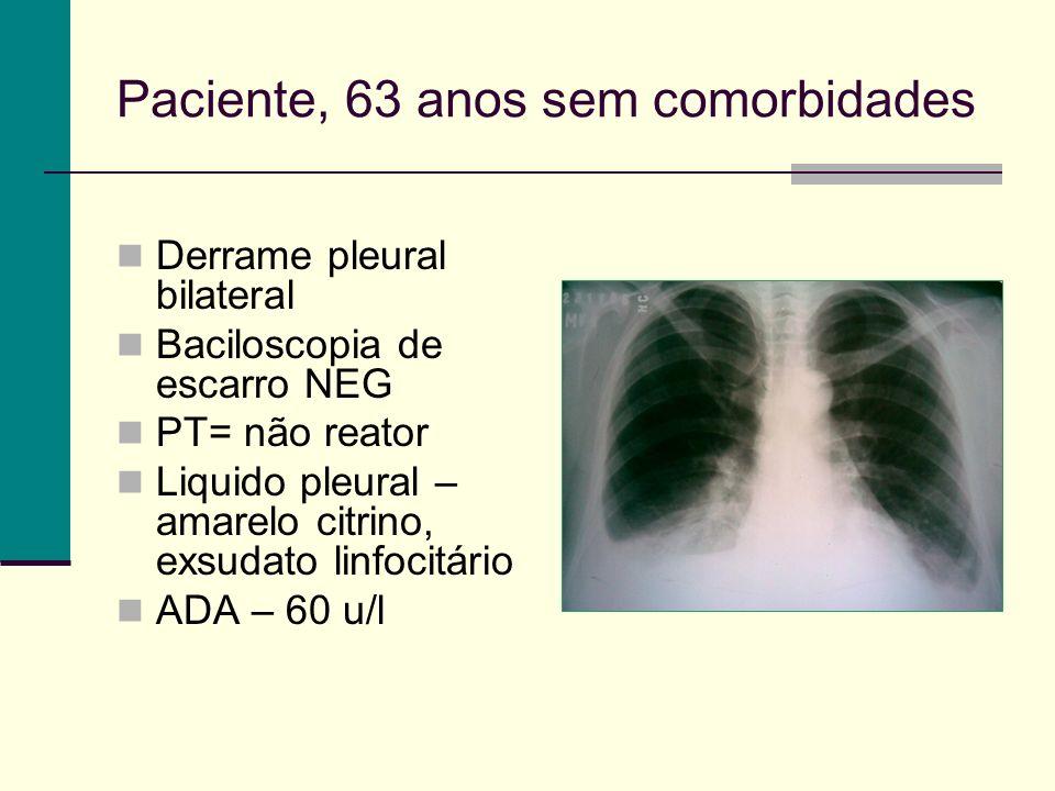 Paciente, 63 anos sem comorbidades Derrame pleural bilateral Baciloscopia de escarro NEG PT= não reator Liquido pleural – amarelo citrino, exsudato linfocitário ADA – 60 u/l