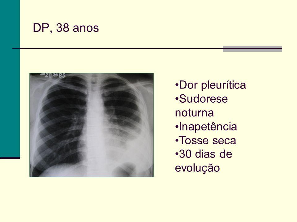 DP, 38 anos Dor pleurítica Sudorese noturna Inapetência Tosse seca 30 dias de evolução