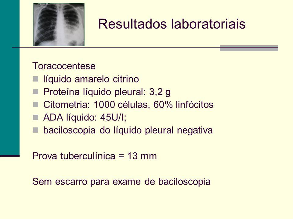 Resultados laboratoriais Toracocentese líquido amarelo citrino Proteína líquido pleural: 3,2 g Citometria: 1000 células, 60% linfócitos ADA líquido: 45U/I; baciloscopia do líquido pleural negativa Prova tuberculínica = 13 mm Sem escarro para exame de baciloscopia