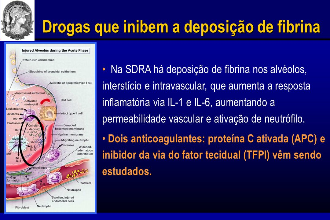 Drogas que inibem a deposição de fibrina APC inibe os fatores Va e VIIIa e apresenta efeitos anti-inflamatórios diminuindo a produção de TNF-, IL-1, e IL-6.