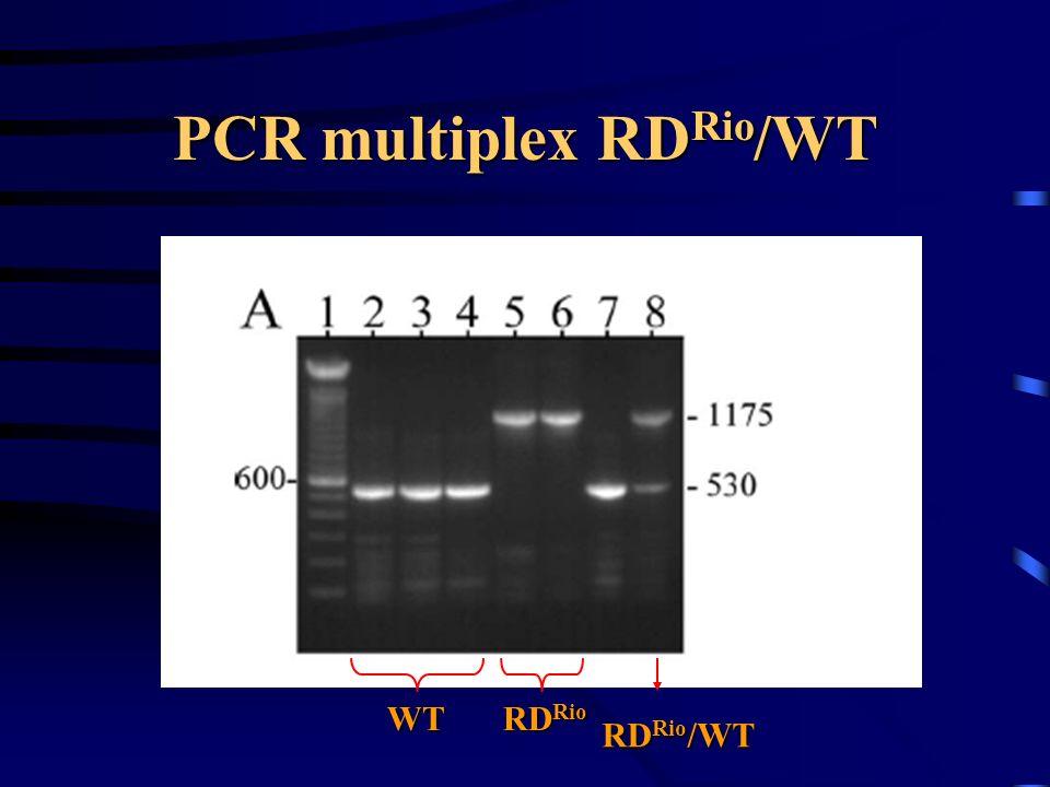 PCR multiplex RD Rio /WT RD Rio WT RD Rio /WT
