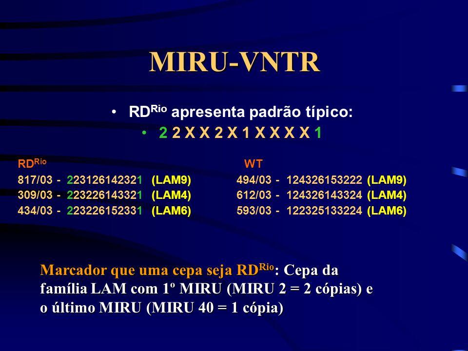 MIRU-VNTR RD Rio apresenta padrão típico: 2 2 X X 2 X 1 X X X X 1 RD Rio WT 817/03 - 223126142321 (LAM9) 494/03 - 124326153222 (LAM9) 309/03 - 2232261