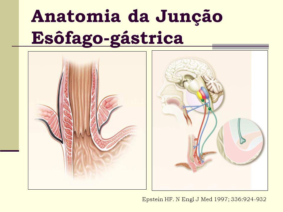 Anatomia da Junção Esôfago-gástrica Epstein HF. N Engl J Med 1997; 336:924-932