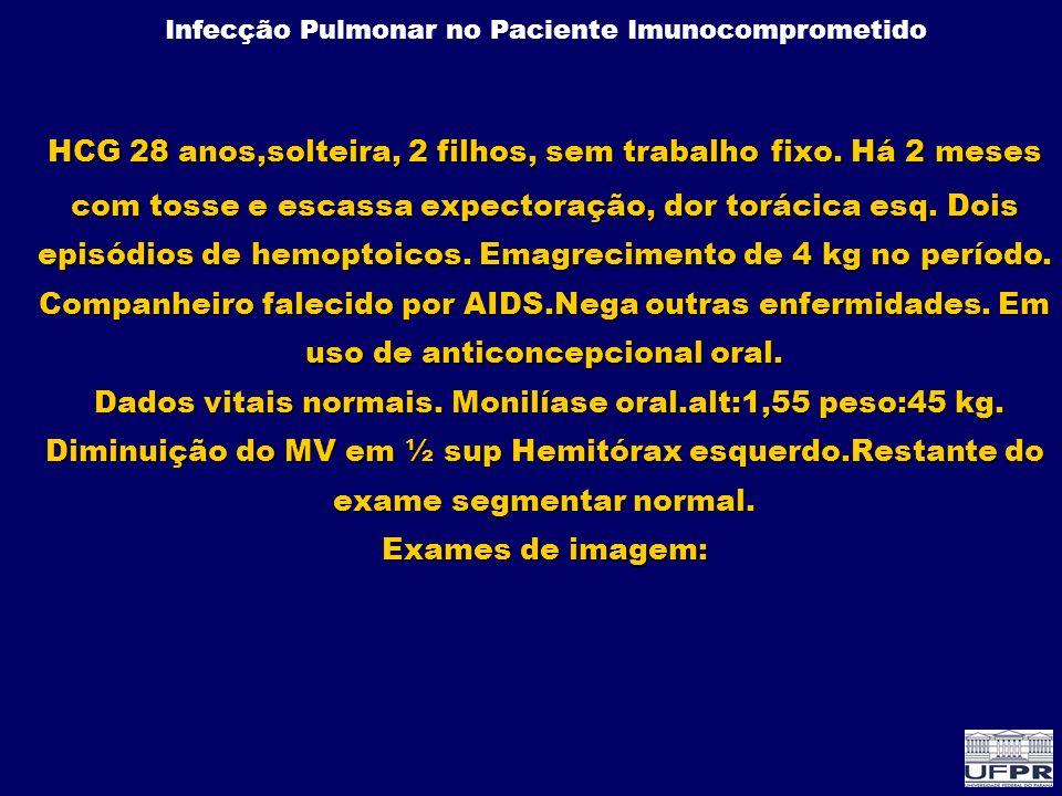 Infecção Pulmonar no Paciente Imunocomprometido Pneumonia por CMV Hipoxemia 100% Dispnéia 68% Febre 63% Crepitantes 58% Tosse 37% Início do quadro(média):dia + 110 Média (exceto 5 casos tardios >150): dia +55 Clínica – 36 casos STMO-HC/UFPR