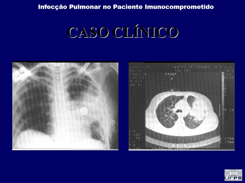 Infecção Pulmonar no Paciente Imunocomprometido Infiltrado intersticial - Rx Exame de imagem Lesão intersticial Vidro fosco - TAC
