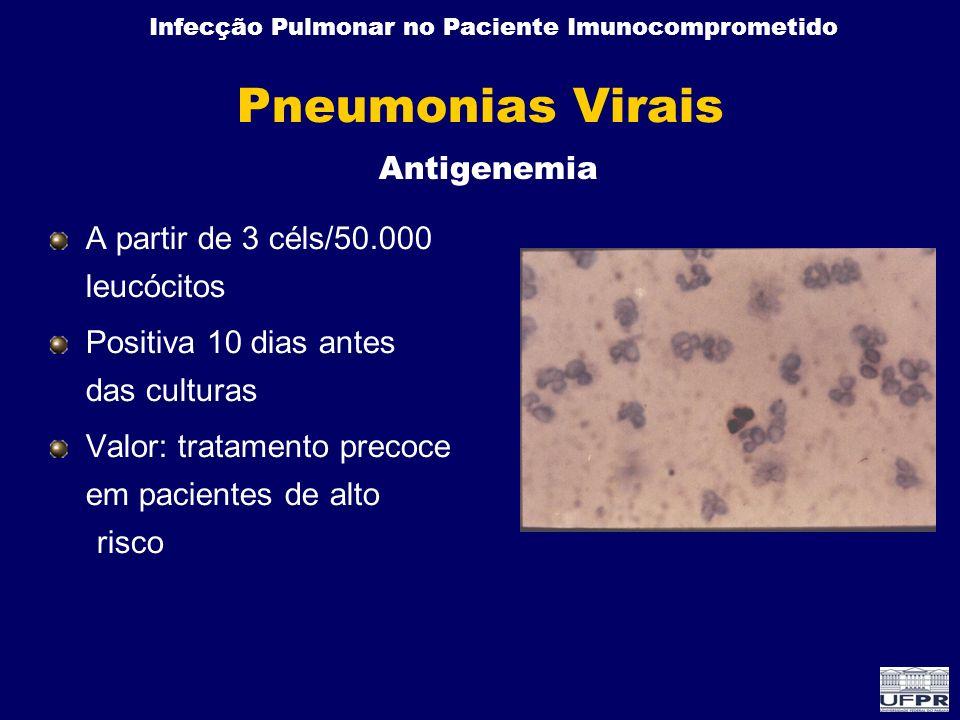 Infecção Pulmonar no Paciente Imunocomprometido Pneumonias Virais A partir de 3 céls/50.000 leucócitos Positiva 10 dias antes das culturas Valor: trat