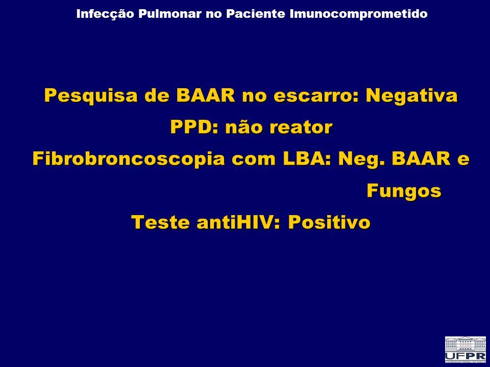 Infecção Pulmonar no Paciente Imunocomprometido Pesquisa de BAAR no escarro: Negativa PPD: não reator Fibrobroncoscopia com LBA: Neg. BAAR e Fungos Te